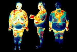 висцеральный жир-2